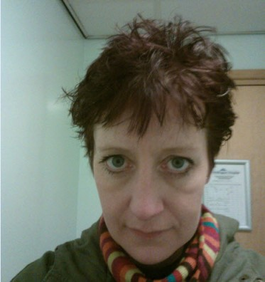 7th March 2014: Post EEG hair.  They stick thingys to your head with a cross between lard and hair gel that makes your hair solid.  I had a two hour journey home.  Thank god I hat a hat in my bag...